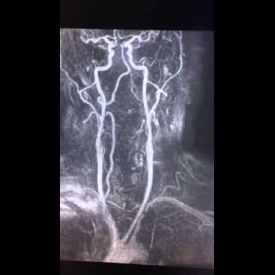 Subclavian Steal Syndrome – Neck MRI