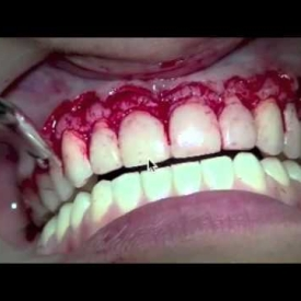 Crown Lenghtening and E-max Veneers