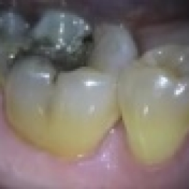 Papillomas and POF Removal