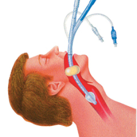 Oesophageal Intubation