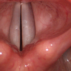 Vocal Cords in Action