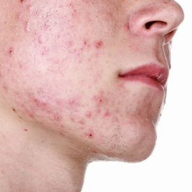 Management of Acne