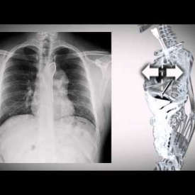 Silhouetted outline of chest radiographs for case