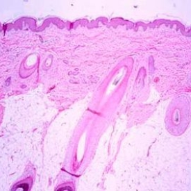 Histology of thin Skin