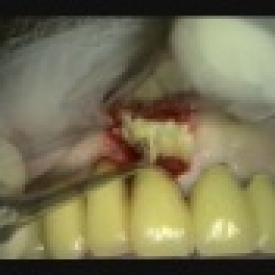 Socket Preservation #8 Failing Bridge Abutment