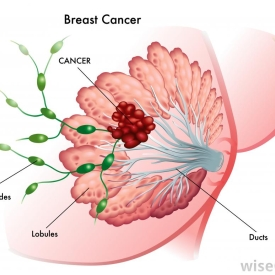 Spread of prostate cancer