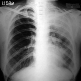 Chest X-ray: Upper Lobe Collapse
