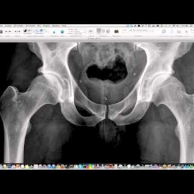 Pelvis And Hips – Essential Radiography