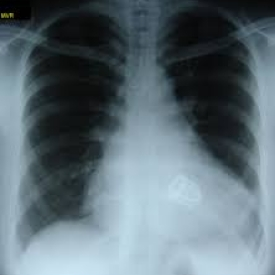 Chest X-ray: Aortic & Mitral Valve