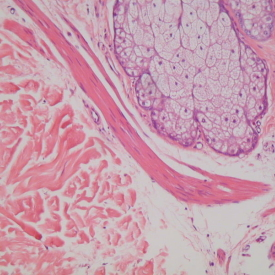 Histology of Fallopian Tube