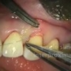 Periodontal Microsurgery: AlloDerm Grafting
