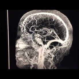 Angiogram Of The Head – Time Resolved MRI