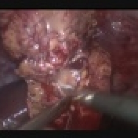 Laparoscopic Left Partial Nephrectomy
