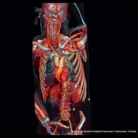 Whole Body CT Scan