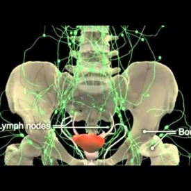 How Prostate Cancer Develops in Prostate Gland