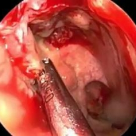 Endoscopic Nasal Polypectomy