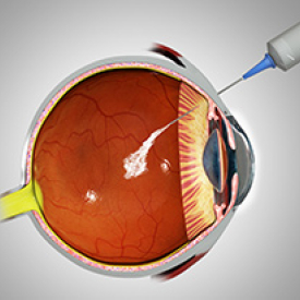 Intravitreal Injection Technique