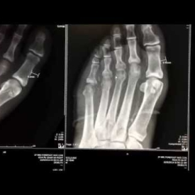 Bone Infection And Osteomyelitis In Diabetes Patient